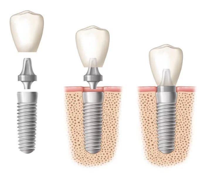 Τα οδοντικά εμφυτεύματα είναι τεχνητά υποκατάστατα δοντιών τα οποία εμφυτεύονται μέσα στο οστούν της γνάθου στη θέση ελλιπόντων δοντιών.