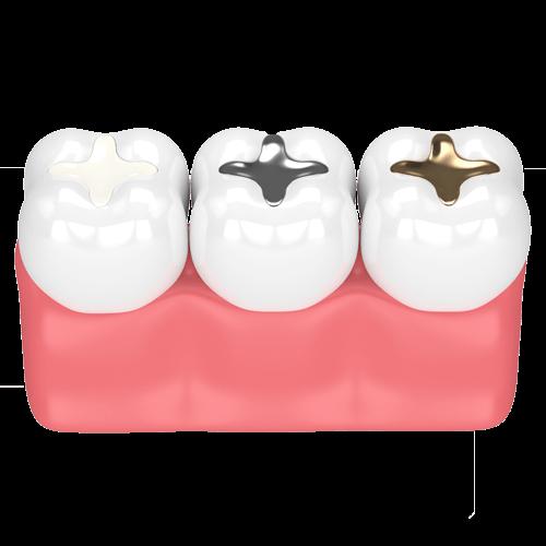 Η θεραπευτική οδοντιατρική στοχεύει στην αποκατάσταση της λειτουργικότητας του στοματογναθικού συστήματος. Περιλαμβάνει ένα ευρύτατο φάσμα δραστηριοτήτων μερικές από τις οποίες μπορούν να σας αφορούν άμεσα. CC Dental