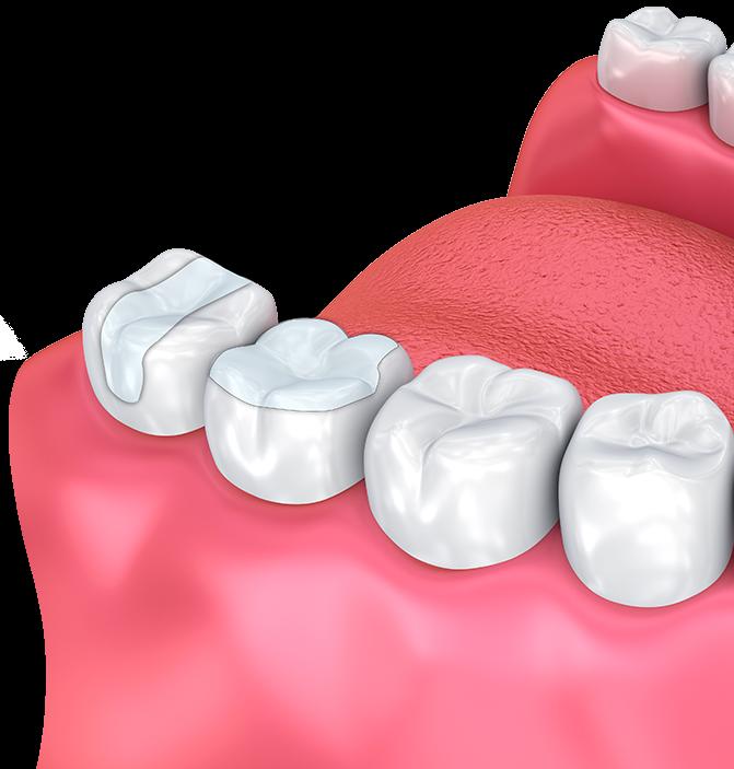 Η αισθητική οδοντιατρική στοχεύει στη βελτίωση της εμφάνισης ενός χαμόγελου. Σε μερικές περιπτώσεις συνοδεύεται από ανάλογη βελτίωση της λειτουργικότητας. CC Dental